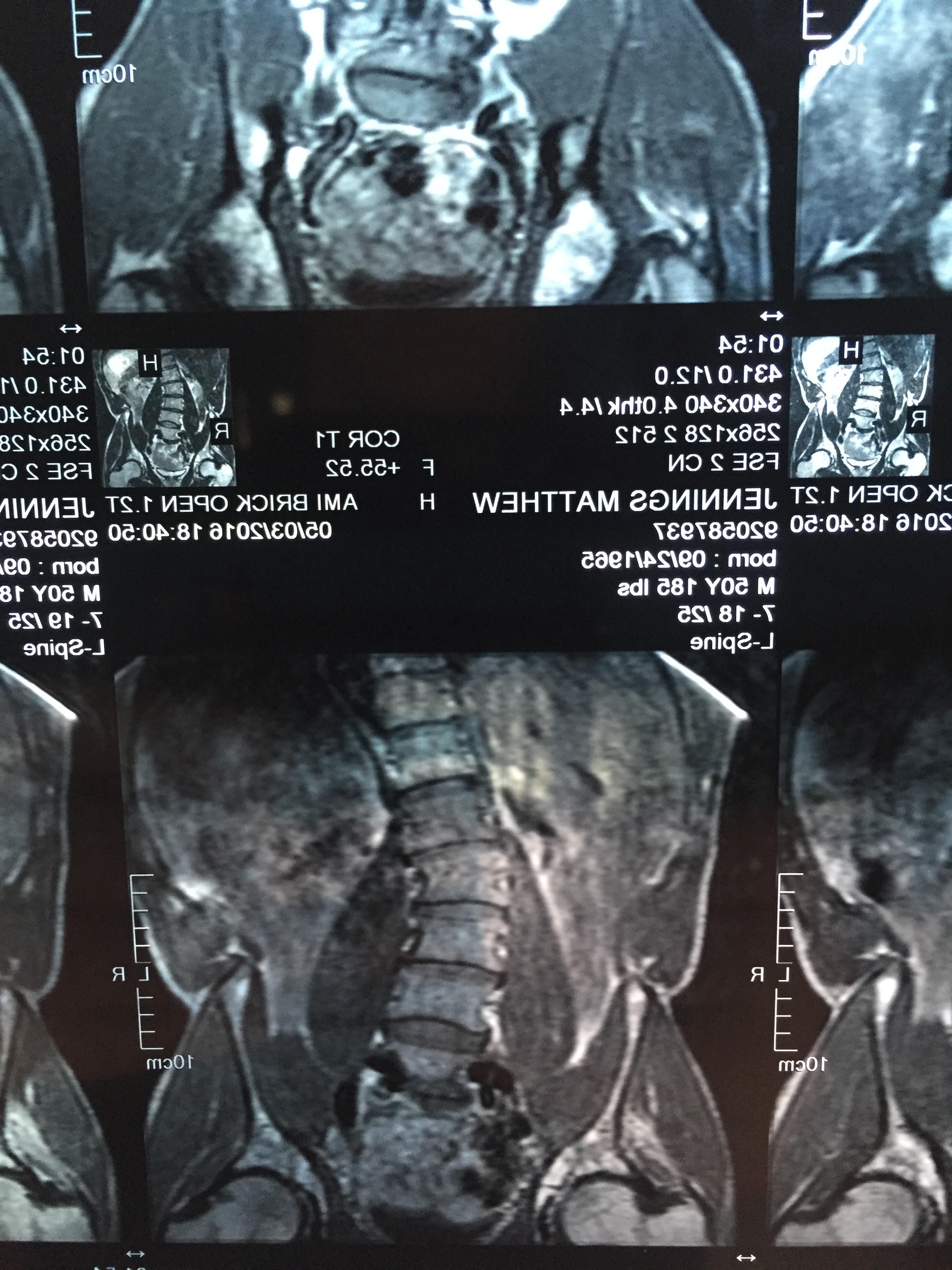 Matt Scoliosis MRI